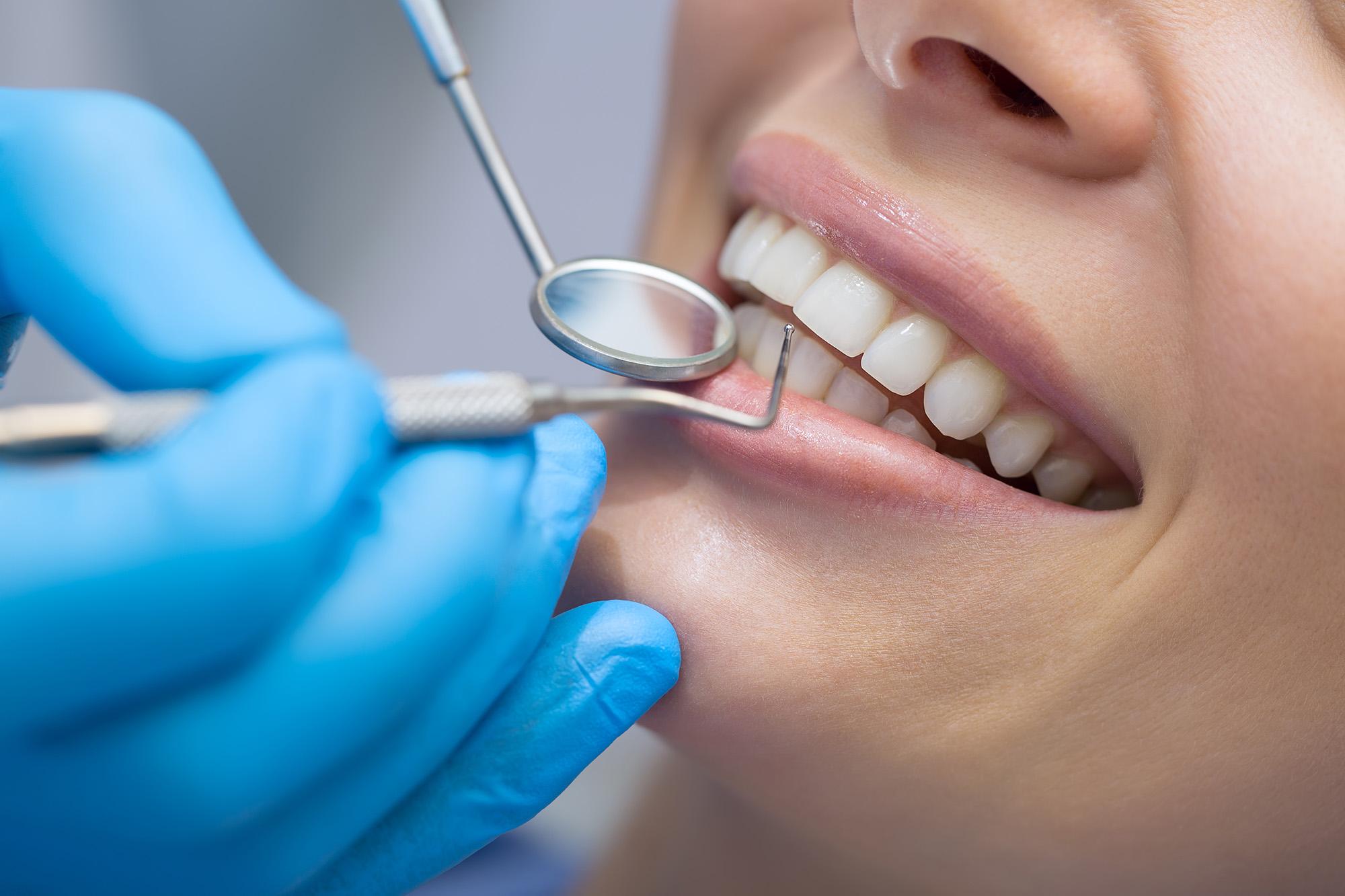 kodėl genda dantys
